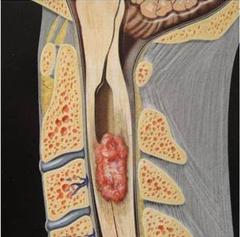脊髓肿瘤一般是良性还是恶性